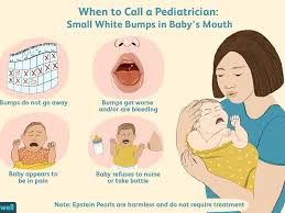 epstein pearls in a baby s mouth