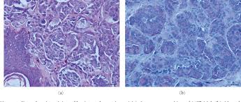 Figure 1 from Immunohistochemical Reactivity of the 14F7 Monoclonal  Antibody Raised against N-Glycolyl GM3 Ganglioside in Some Benign and  Malignant Skin Neoplasms | Semantic Scholar