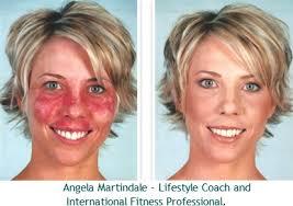 best makeup for rosacea redness