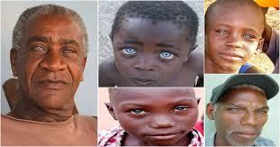 some blacks have natural blue eyes
