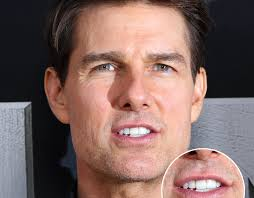 Tom Cruise's Middle Tooth — the Story Behind His Smile