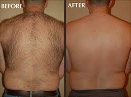 laser hair removal lexington ky