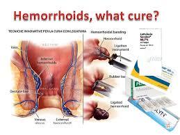 Le cure per le emorroidi