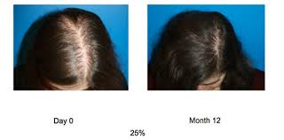 prp acell hair growth therapy