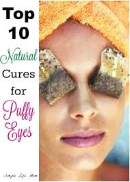 top 10 cures for puffy eyes simple