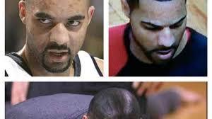 black magic solution for male baldness
