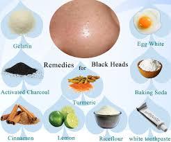 blackhead removal home remedy in hindi