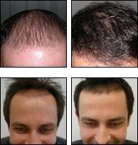 hair transplant surgery and hair