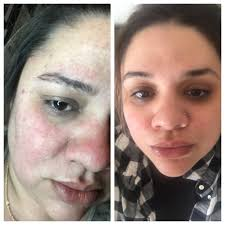 i used snail extract for 3 weeks