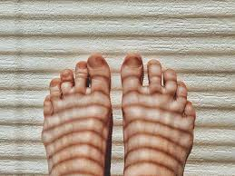toes possible causes and removal