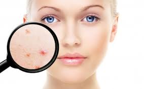 piel del rostro: Tips y Tendencias de piel del rostro