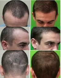 best fue hair transplant doctor