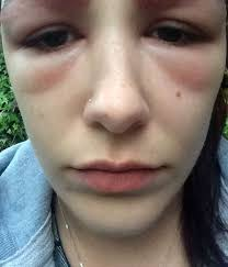 Teen scarred after eyebrow tint treatment left her looking like she'd been  'punched in the face' - Mirror Online