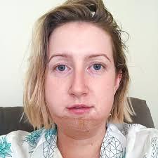 day 4 sneezing jaw surgery bad