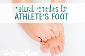 natural ways to remedy athlete s foot