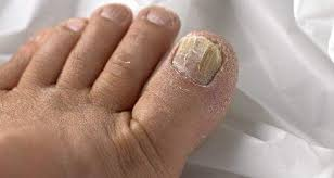 top 5 home remes for toenail fungus