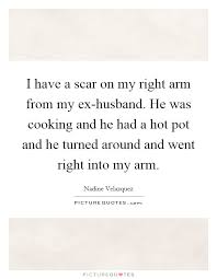 i have a scar on my right arm from my ex husband he was cooking
