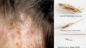get rid of lice eggs in hair fast