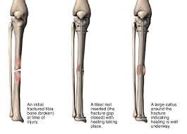 understanding your intramedullary nail