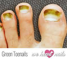 green toenails causes prevention