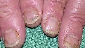 psoriasis pictures treatments symptoms