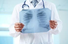 Чем вреден рентген? Опасен ли он для детей, беременных? | Ответы ...