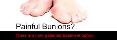 lapiplasty 3d bunion correction foot