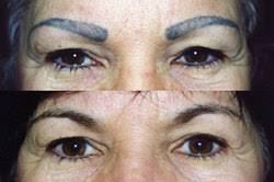 new eyebrow tattoo removal video
