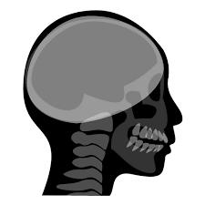 セファロレントゲン(頭蓋骨)背景白【歯科素材.com】歯医者さん向け ...