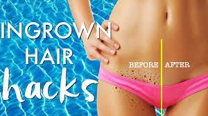 ingrown hair hacks get rid of ingrown