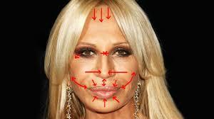 donatella versace s plastic surgery