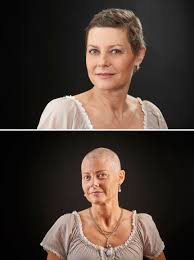 taxotere permanent hair loss women