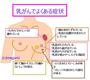"「乳癌」の画像検索結果"""