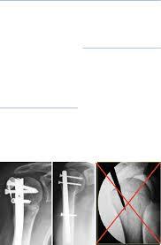 intramedullary nail
