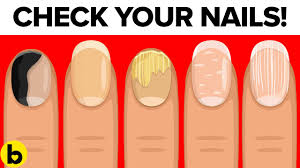 8 things your nails can tell you about