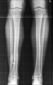treatment of distal tibial fractures