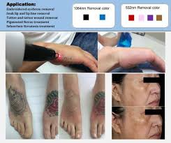 Image result for laser tattoo removal images