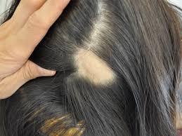 hair loss clininc thinning hair cure
