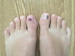 bruised toenails will continuing to