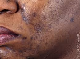 Pigmentation Disorders: Diagnosis and Management - American Family ...