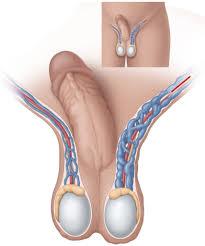 Varicocele   EAU Patient Information