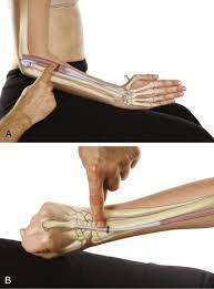 tennis elbow lateral epicondylitis