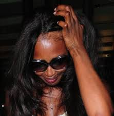 scratching your scalp lead to hair loss