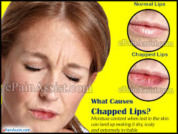 how to fix chapped lips best remes