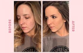 makeup for severe acne scarring