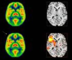 Resultado de imagen de (tomografía por emisión de positrones computerizada: