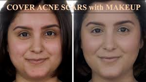cover acne scars and redness with