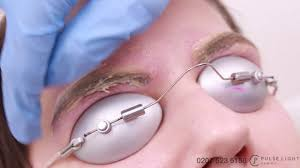 laser eyebrow tattoo removal procedure