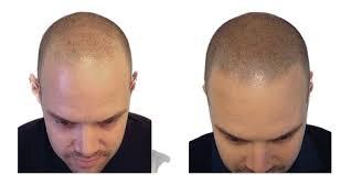 hair loss discover scalp micro