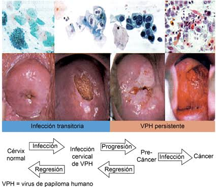 """Image result for cáncer cervicouterino"""""""